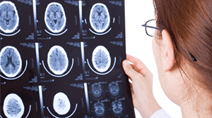 Are Head Injuries Immediately Noticeable After An Accident?